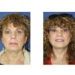 תמונות לפני ואחרי מתיחת פנים - 11