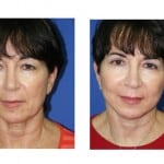 תמונות לפני ואחרי מתיחת פנים - 19