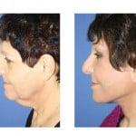 תמונות לפני ואחרי מתיחת פנים - 25