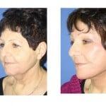 תמונות לפני ואחרי מתיחת פנים - 26