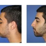 תמונות לפני ואחרי ניתוח אף - 30
