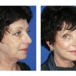 תמונות לפני ואחרי מתיחת פנים - 4