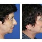 תמונות לפני ואחרי מתיחת פנים - 5