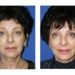 תמונות לפני ואחרי מתיחת פנים - 6
